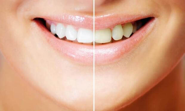 Diş beyazlatma nedir?
