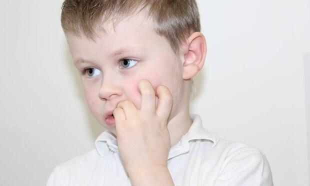 Çocuklarda tırnak yemek nasıl önlenir?