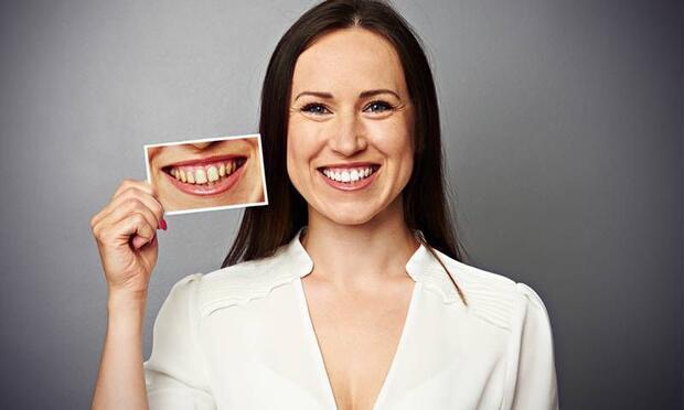 Diş beyazlatma işlemi nasıl yapılır?