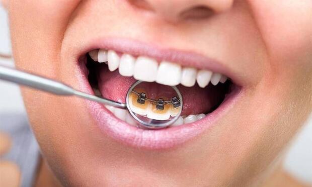 Görünmez diş telleriyle rahatça gülümseyin!