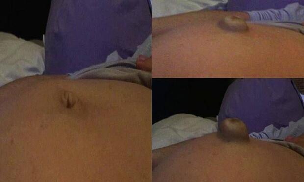 Hamilelikte göbek fıtığı neden olur?