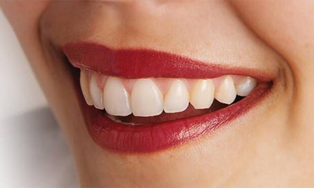 Doğal bir diş eti hangi renkte olmalı?