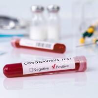 First COVID-19 case in Turkey originated in US Study