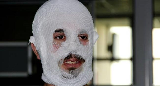 Moisturizer 'burns' Turkish man's face