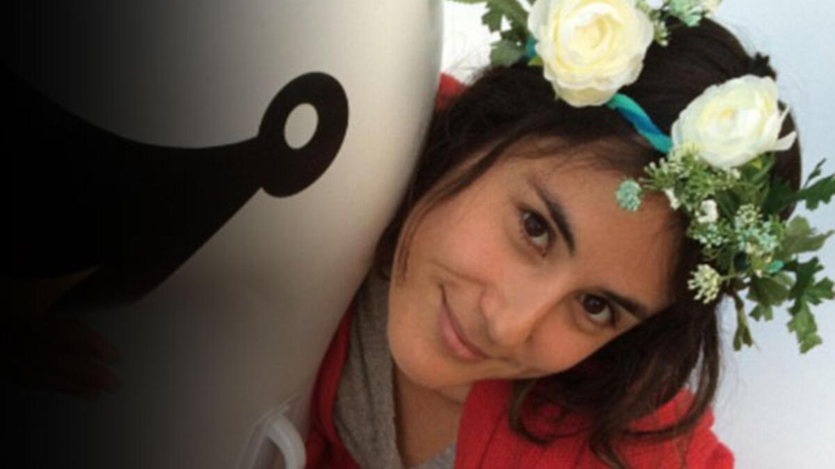8 Aydır Saçlarını Şampuanlamayan Kadının Son Hali 63