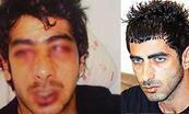 Yunanistan'da polis dayağına 450 bin euro ceza