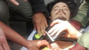 Beşiktaşta bir gösterici bıçaklandı