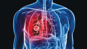 Akciğer için güç birliği