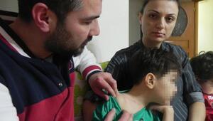 Anaokulundaki çocuğun boynundaki çiziklere karşılıklı suçlama