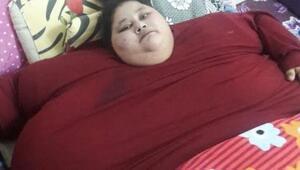 Dünyanın en kilolu kadını ameliyat için Hindistanda