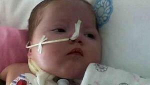 Firdevs bebek yaşamı sürdürebilmesi için 7 bin lira bekliyor
