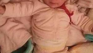 Yangında 13 aylık bebek yanarak can verdi- ek fotoğraf