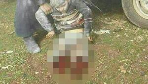 Suriye'de bacakları kopan çocuk tedavi için Hataya getirildi - ekf otoğraf