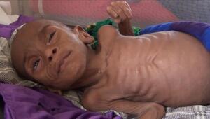 Somali açlıkla boğuşuyor