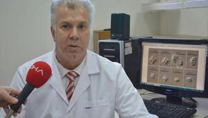 Merkez Haberleri: Karadenizdeki 2 balık türünde hastalık yapan parazit tespit edildi 38