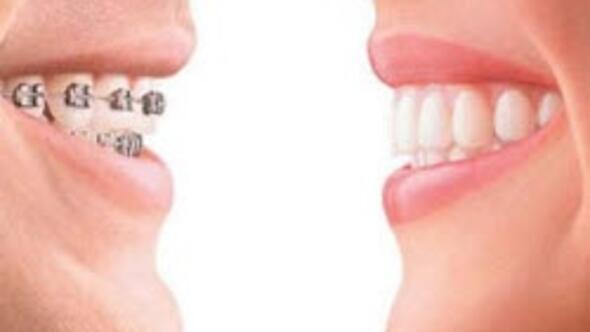 Çarpık dişlerin telsiz tedavisi artık mümkün