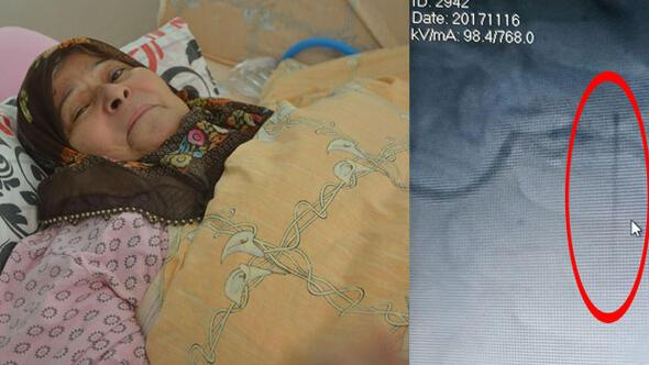 Kalp krizi sonucu kaldırıldığı hastanede hayatının şokunu yaşadı