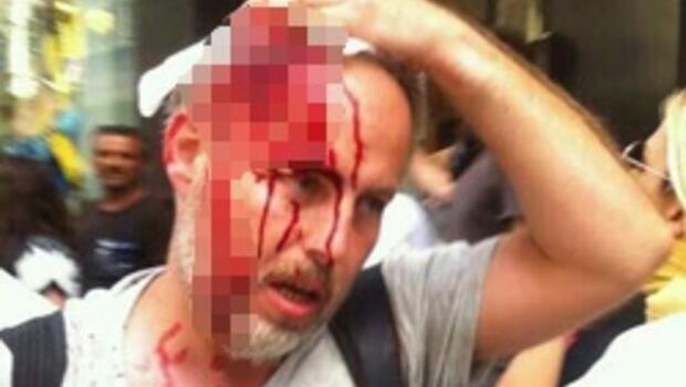 O fotoğrafı çeken Reuters muhabiri de yaralandı