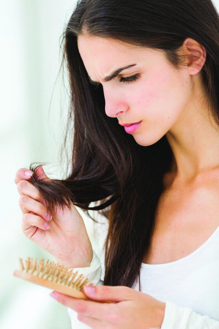 Tiroide Bağlı Saç Dökülmesi İçin Doğal 8 Basit Yol