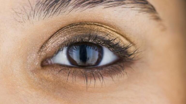 Göz altı torbaları ve mor halkalar neden oluşur