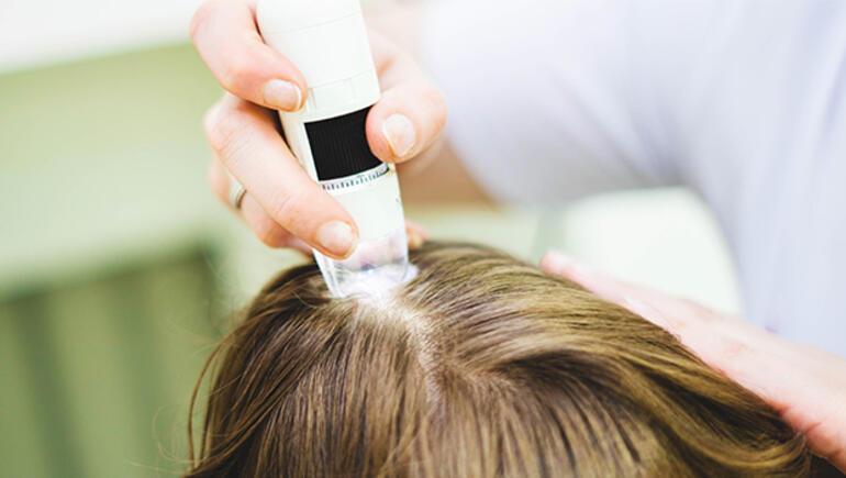 Saç dökülmesinde stres faktörüne dikkat