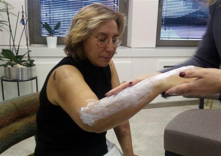 Estetisyen doktora beyzbol sopasıyla saldırdılar