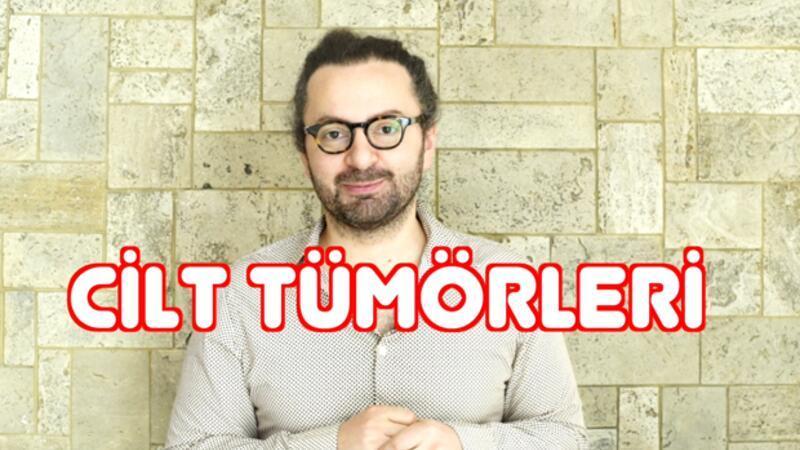 Cilt tümörleri | Doktor Bu Ne?