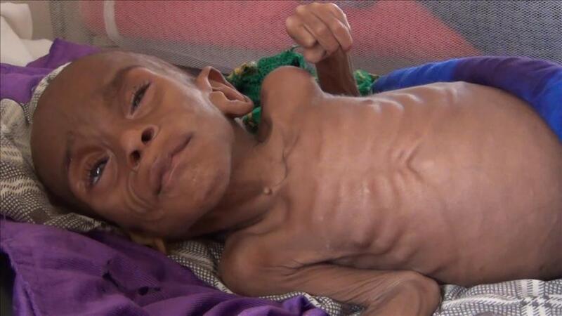 Somali açlıkla boğuşuyor!