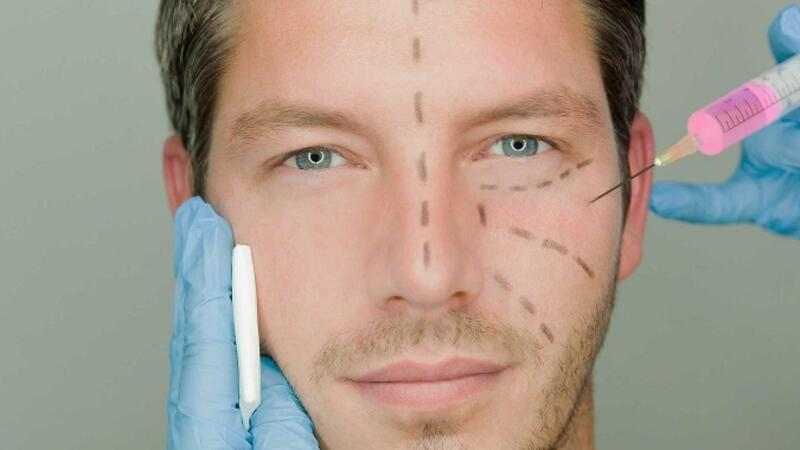Erkekler arasında yaygın olan 5 popüler estetik uygulaması | Doktor Bu Ne?