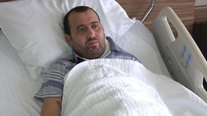 Eight-kg tumor removed from Azerbaijani man after surgery in Turkey