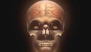 Milattan önce de migrene çare aranmış