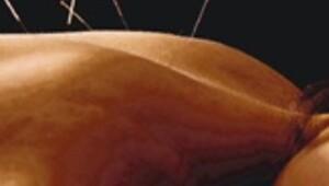 Akupunktur ağrı kesmiyor