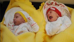 Siyam ikizleri ameliyatla ayrıldı