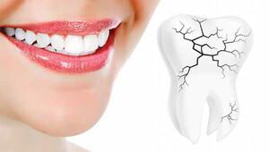 Gıcırdayan dişlerin sebebi Sınav stresi, aşk sancısı, gelecek kaygısı