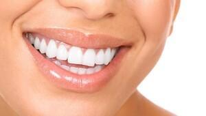 Dişleri güçlendiren besinler nelerdir? Bu 10 besini tüketerek diş sağlığınızı koruyun!