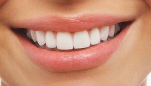 Diş beyazlatma işlemi diş sağlığı için zararlı mı?