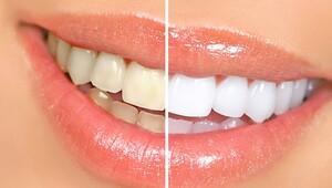 Günümüzün teknolojik gelişmeleri ışığında diş hekimliğinde estetik