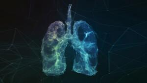 Domuz gribi ile akciğerleri işlevini yitirdi yapay akciğer ile kurtuldu