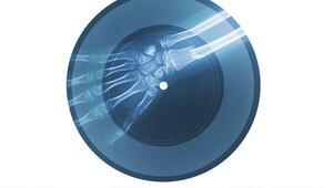 Gerçek röntgenlerden gerçek bir plak: KADINLAR VARDIR!