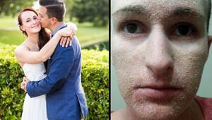 Genç kadının derisi pul pul döküldü!