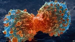 Yılda 300 bin kanser vakası