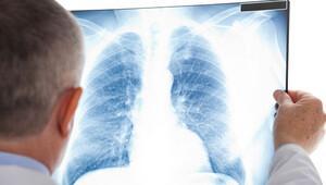 Radyolojide Türkiye'de koruma ve denetleme yok
