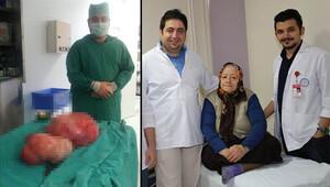 Karnındaki 22 kilogramlık kitleyle 18 yıl yaşadı