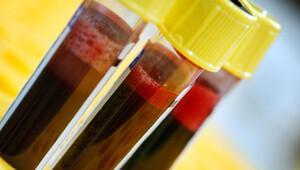 Kan testi ile kanser teşhisi mümkün olabilir