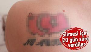 Bu dövme yüzünden bir hafta işkence gördü!