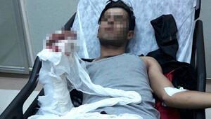 Elinde bomba patlayan şüpheli hastanede gözaltına alındı