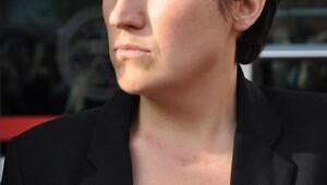 Tubayı bıçakla yaralayan eski sevgiliye 14 yıl hapis cezası (2)