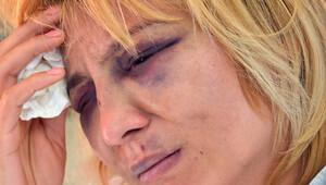 Bulaşığı elde yıkamıyor diye eşini hastanelik etti