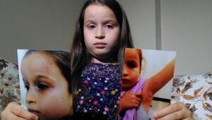 8 yaşındaki İremin diş doktoru tarafından darp edildiği iddası