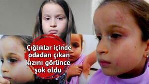 8 yaşındaki İrem'in diş doktoru tarafından darp edildiği iddası